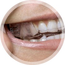 Closeup of smile with oral appliance